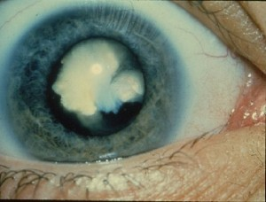 Nuclear Sclerotic - Courtesy National Eye Institute